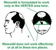 E2_minoxidil_2